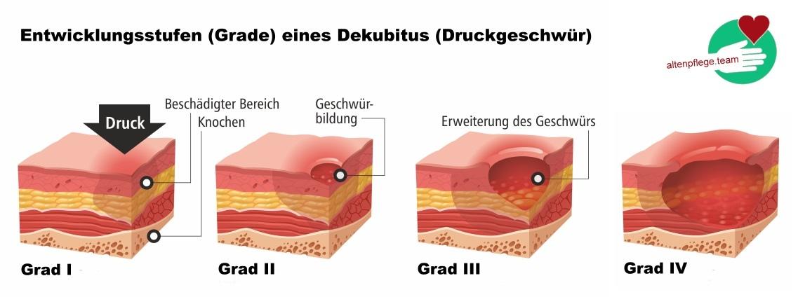 Dekubitus Grade
